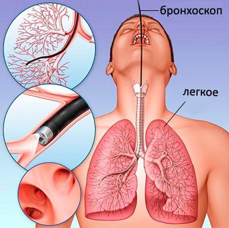 Осложнения бронхоскопии и меры их профилактики