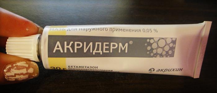 Акридерм лечение грибка ногтей